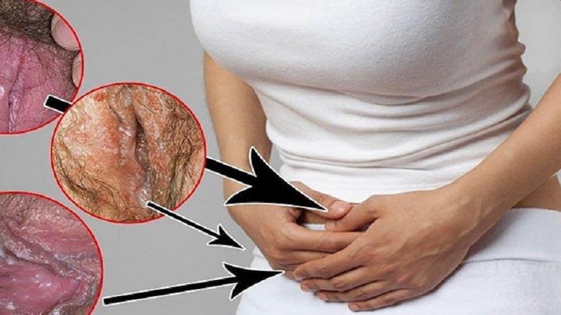 عفونت های واژینال مقاوم به درمان