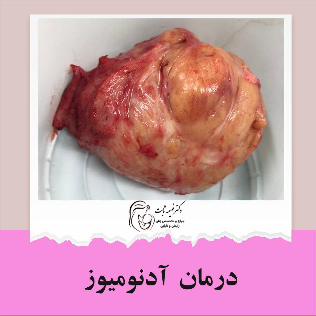 متخصص زنان اصفهان | جراحی ادنومیوز