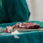 متخصص زنان اصفهان | خونریزی جفت در دوران بارداری
